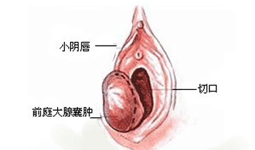 前庭大腺囊肿