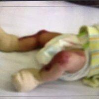 女婴先天皮肤缺失,可能跟父母的这些行为有关!